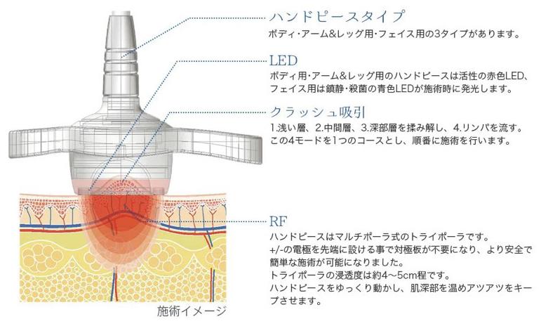 ラジオ波機械